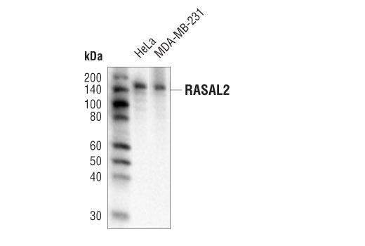 Monoclonal Antibody - RASAL2 (D6K9L) Rabbit mAb - Immunoprecipitation, Western Blotting, UniProt ID Q9UJF2, Entrez ID 9462 #82481 - #82481