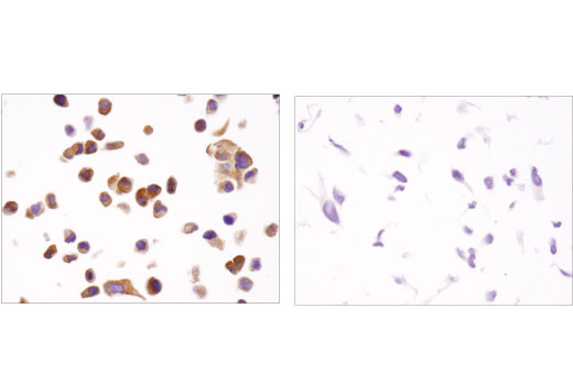 Immunohistochemical analysis of paraffin-embedded T-47D (left) and MCF 10A (right) cell pellets using PREX1 (D8D2K) Rabbit mAb (IHC Specific).
