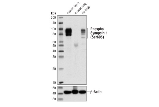 Western blot analysis of extracts from mouse brain, mouse lung, and rat brain using Phospho-Synapsin-1 (Ser605) (D4B9I) Rabbit mAb (upper) and and β-Actin (D6A8) Rabbit mAb #8457 (lower).