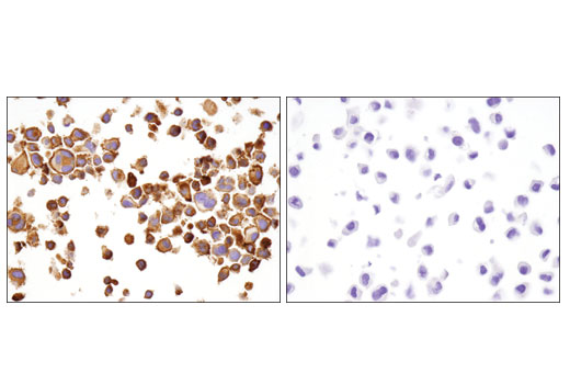 Immunohistochemical analysis of paraffin-embedded HDLM-2 (left) and PC-3 (right) cell pellets on SignalSlide<sup>®</sup> PD-L1 IHC Controls #13747 using LAG3 (D2G4O™) XP<sup>®</sup> Rabbit mAb.