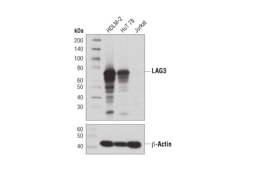 Western blot analysis of extracts from HDLM-2, HuT 78, and Jurkat cells using LAG3 (D2G4O™) XP<sup>®</sup> Rabbit mAb (upper) and β-Actin (D6A8) Rabbit mAb #8457 (lower).