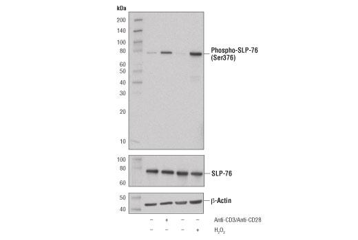 Monoclonal Antibody - Phospho-SLP-76 (Ser376) (D7S1K) XP® Rabbit mAb, UniProt ID Q13094, Entrez ID 3937 #92711, Slp76