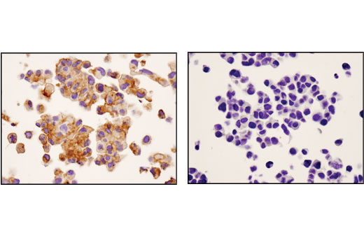 Immunohistochemical analysis of paraffin-embedded ACHN (left) or MCF7 (right) cell pellets using SIRPα/SHPS1 (D6I3M) Rabbit mAb.