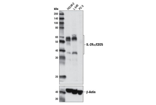 Western blot analysis of extracts from HDLM-2, L-540, and PC-3 cell lines using IL-2Rα/CD25 (D6K5F) Rabbit mAb (upper) and β-Actin (D6A8) Rabbit mAb #8457 (lower).