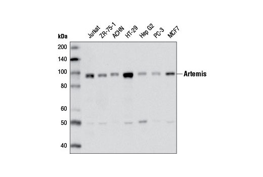 Image 11: Non-Homologous End Joining (NHEJ) DNA Repair Antibody Sampler Kit