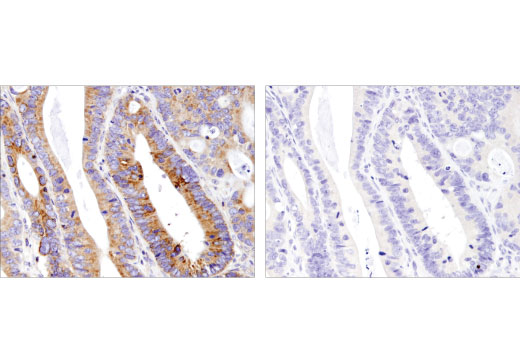 Immunohistochemical analysis of paraffin-embedded human colon carcinoma using Mcl-1 (D5V5L) Rabbit mAb in the presence of control peptide (left) and antigen-specific peptide (right).