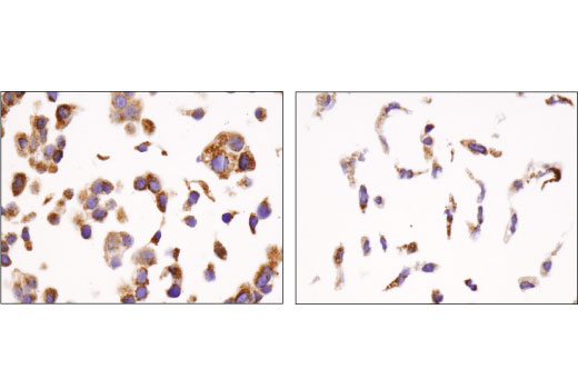 Immunohistochemical analysis of paraffin-embedded MCF7 (left) and SK-OV-3 (right) cell pellets using Mcl-1 (D5V5L) Rabbit mAb.