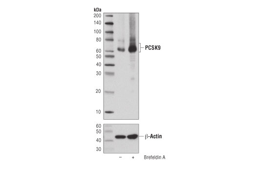 Western blot analysis of extracts from T84 cells, untreated (-) or treated with Brefeldin A #9972 (100 ng/ml, 16 hrs; +), using PCSK9 (D7U6L) Rabbit mAb (upper) or β-Actin (D6A8) Rabbit mAb #8457 (lower).