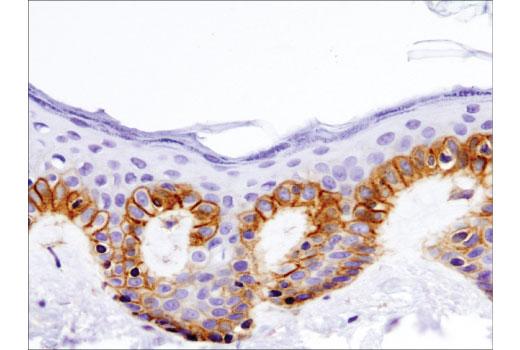 Immunohistochemical analysis of paraffin-embedded human skin using Integrin β1 (D6S1W) Rabbit mAb.