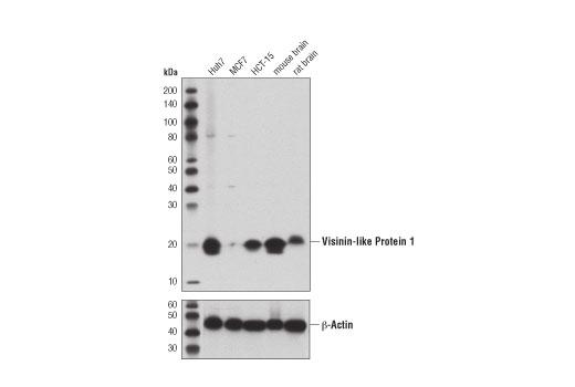 Monoclonal Antibody - Visinin-Like Protein 1 (D9L6L) Rabbit mAb, UniProt ID P62760, Entrez ID 7447 #49468, Neuroscience