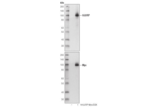 Western blot analysis of extracts from 293T cells, mock transfected (-) or transfected with Myc/DDK-tagged full-length human HJURP (hHJURP-Myc/DDK; +), using HJURP (D3A8Z) Rabbit mAb (upper) or Myc-Tag (71D10) Rabbit mAb #2278 (lower).