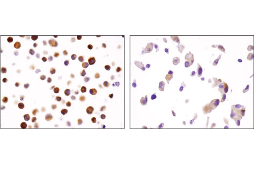 Immunohistochemical analysis of paraffin-embedded K-562 (left) and LNCaP (right) cell pellets using HDAC7 (D4E1L) Rabbit mAb.
