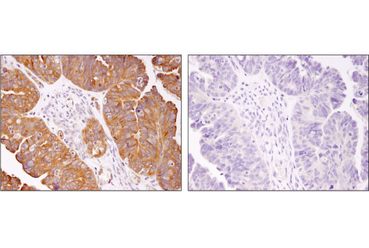 Immunohistochemical analysis of paraffin-embedded human ovarian carcinoma using HDAC7 (D4E1L) Rabbit mAb in the presence of control peptide (left) or antigen-specific peptide (right).