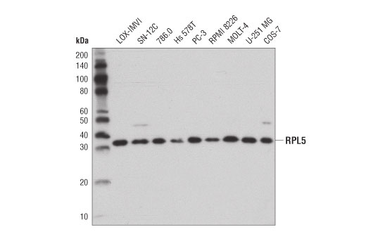 Western blot analysis of extracts from various cell lines using RPL5 (D5Q5X) Rabbit mAb.