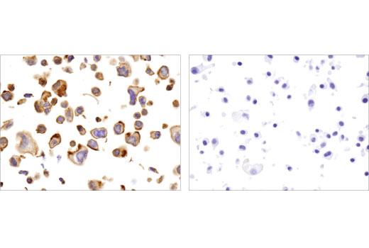 Immunohistochemical analysis of paraffin-embedded DLD-1 and U-87 MG cell pellets using γ-Catenin (D9M1Q) Rabbit mAb #75550.