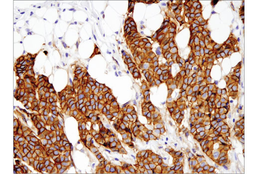 Immunohistochemical analysis of paraffin-embedded human breast carcinoma using γ-Catenin (D9M1Q) Rabbit mAb #75550.