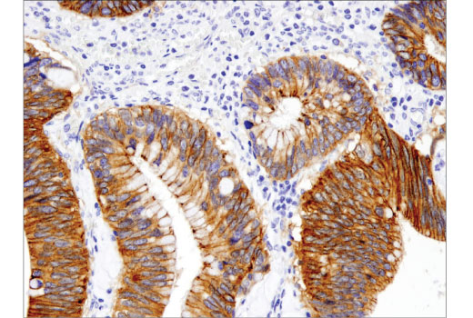 Immunohistochemical analysis of paraffin-embedded human colon carcinoma using γ-Catenin (D9M1Q) Rabbit mAb #75550.