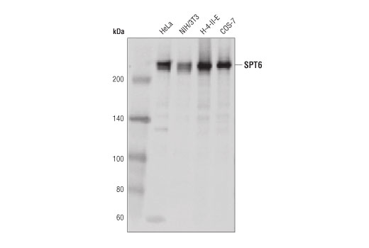 Western blot analysis of extracts from various cell lines using SPT6 (D6J9H) Rabbit mAb.