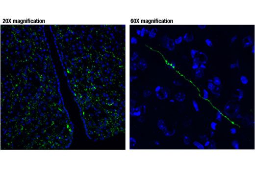Confocal immunofluorescent analysis of the hypothalamic region of normal mouse brain (left) and a magnified image (right) using Vasopressin (D8T3K) Rabbit mAb (green). Blue pseudocolor = DRAQ5<sup>®</sup> #4084 (fluorescent DNA dye).