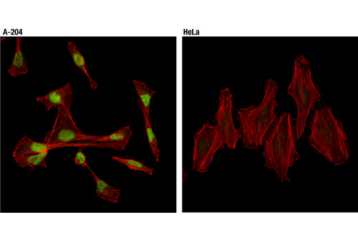 Confocal immunofluorescent analysis of A-204 (left) or HeLa (right) cells using Sox9 (D8G8H) (Alexa Fluor<sup>®</sup> 488 Conjugate) Rabbit mAb (green). Actin filaments were labeled with DyLight™ 554 Phalloidin #13054 (red).