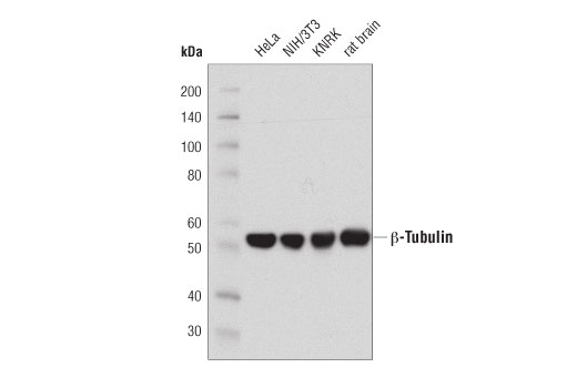 Western blot analysis of extracts from HeLa, NIH/3T3, KNRK cells and rat brain using β-Tubulin (D3U1W) Mouse mAb.
