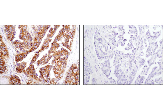 Immunohistochemical analysis of paraffin-embedded ovarian carcinoma using CD9 (D3H4P) Rabbit mAb in the presence of control peptide (left) or antigen-specific peptide (right).