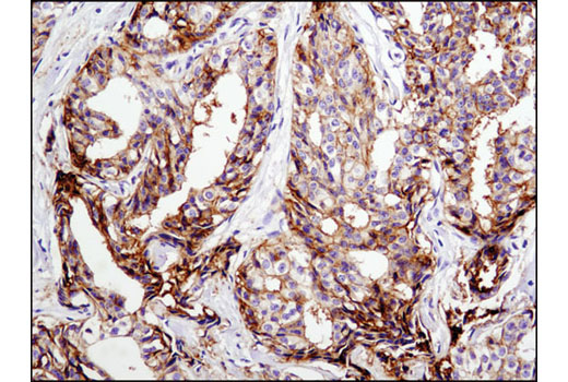 Immunohistochemical analysis of paraffin-embedded breast carcinoma using CD9 (D3H4P) Rabbit mAb.
