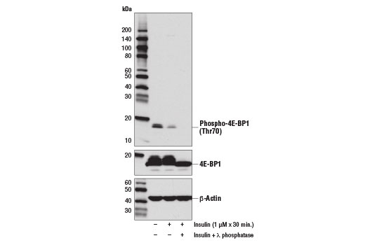 Western blot analysis of extracts from serum starved HeLa cells, untreated (-), insulin-treated (1 μM, 30 min; +), or insulin and λ phosphatase-treated (+), using Phospho-4E-BP1 (Thr70) (D7F6I) Rabbit mAb (upper), 4E-BP1 (53H11) Rabbit mAb #9644 (middle), and β-Actin (D6A8) Rabbit mAb #8457 (lower).