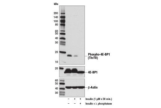 Human 4e-bp1 Thr70 Phosphate