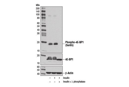 Monoclonal Antibody - Phospho-4E-BP1 (Ser65) (D9G1Q) Rabbit mAb, UniProt ID Q13541, Entrez ID 1978 #13443, Protein Translation