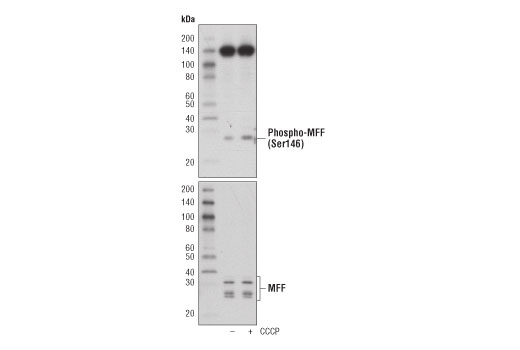 Western blot analysis of extracts from MCF7 cells, untreated (-) or treated with CCCP (100μM, 2hr; +), using phospho-MFF (Ser146) Antibody (upper) or total MFF antibody (lower).