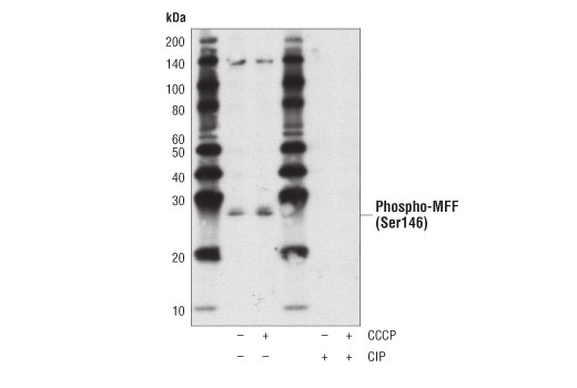 Western blot analysis of extracts from MCF7 cells, untreated (-) or treated with CCCP (100uM, 2hr; +), using Phospho-MFF (Ser146) Antibody. The phospho-specificity of the antibody was verified by treating the membrane with (+) or without (-) calf intestinal phosphatase (CIP) after protein transfer.