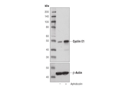 Western blot analysis of extracts from HT-29 cells, untreated (-) or treated with aphidicolin (10 μg/ml; 24 hr; +) using Cyclin E1 (D7T3U) Rabbit mAb (upper) or β-Actin (D6A8) Rabbit mAb #8457 (lower).