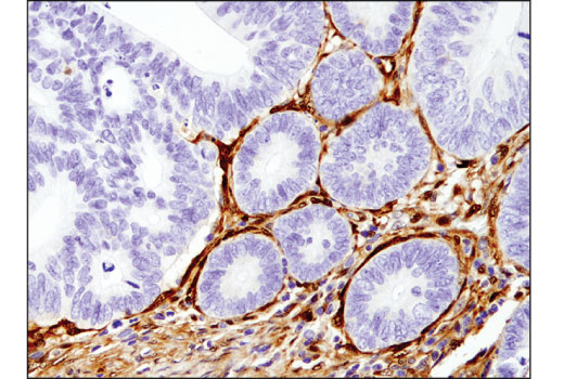 Immunohistochemistry Image 1: Galectin-1/LGALS1 (8A12) Mouse mAb