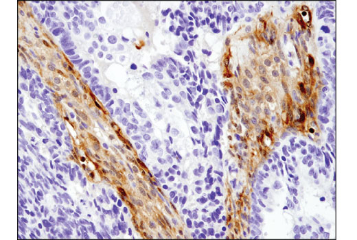 Immunohistochemistry Image 2: Galectin-1/LGALS1 (8A12) Mouse mAb
