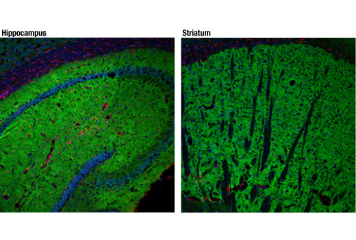 Confocal immunofluorescent analysis of mouse hippocampus (left) and striatum (right) using mGluR5 (D6E7B) Rabbit mAb (green) and GFAP (GA5) Mouse mAb #3670 (red). Blue pseudocolor = DRAQ5<sup>®</sup> #4084 (fluorescent DNA dye).