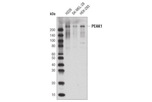 Monoclonal Antibody - PEAK1 (D4G6J) Rabbit mAb - Western Blotting, UniProt ID Q9H792, Entrez ID 79834 #72908, Sgk269