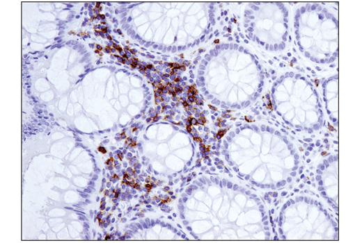 Immunohistochemical analysis of paraffin-embedded human colon adenocarcinoma using ICOS (D1K2T™) (IHC Specific) Rabbit mAb performed on the Leica® BOND™ Rx.