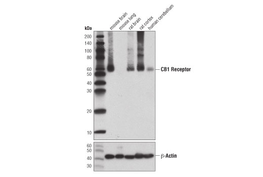 Western blot analysis of extracts from various tissues using CB1 Receptor (D5N5C) Rabbit mAb (upper) and β-Actin (D6A8) Rabbit mAb #8457 (lower).