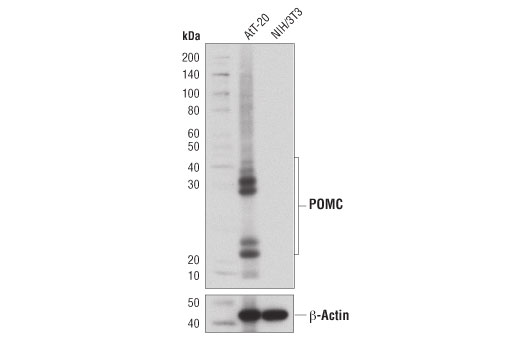 Western blot analysis of extracts from AtT-20 and NIH/3T3 cells using POMC (D3R1U) Rabbit mAb (upper) or β-Actin (D6A8) Rabbit mAb #8457 (lower).