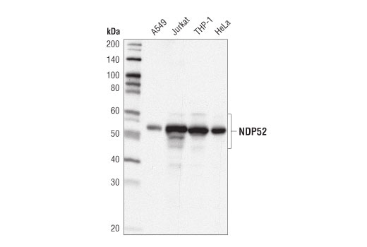 Western blot analysis of extracts from various cell lines using NDP52 (D1E4A) Rabbit mAb.