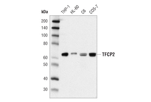 Western blot analysis of extracts from various cell lines using TFCP2 (D1S3V) Rabbit mAb.