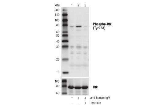 Western blot analysis of extracts from Ramos cells, serum-starved overnight, then vehicle-treated (lane 1), treated with anti-human IgM (12 μg/ml for 10 min, lane 2), or pre-treated with Ibrutinib (1 μM for 60 min) prior to anti-IgM treatment (lane 3), using Phospho-Btk (Tyr223) (D9T6H) Rabbit mAb (upper), and Btk (D3H5) Rabbit mAb #8547 (lower).