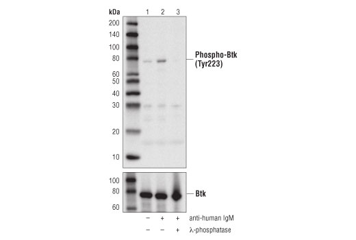 Western blot analysis of extracts from Ramos cells, serum-starved overnight, then vehicle-treated (lane 1), treated with anti-human IgM (12 μg/ml for 10 min, lane 2), or treated with anti-human IgM followed by treatment with λ-phosphatase (lane 3), using Phospho-Btk (Tyr223) (D9T6H) Rabbit mAb (upper), or Btk (D6H5) Rabbit mAb #8547 (lower).