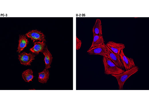 Confocal immunofluorescent analysis of PC-3 (positive, left) and U-2 OS (negative, right) cells using DKK1 (D5V6L) Rabbit mAb (green). Actin filaments were labeled with DyLight™ 554 Phalloidin #13054 (red). Blue pseudocolor = DRAQ5<sup>®</sup> #4084 (fluorescent DNA dye).