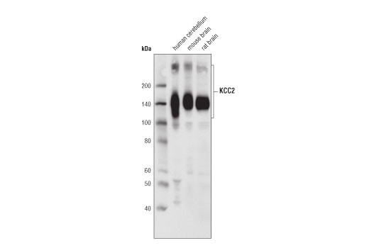 Western blot analysis of extracts from human cerebellum, mouse and rat brain using KCC2 (D1R2R) Rabbit mAb.
