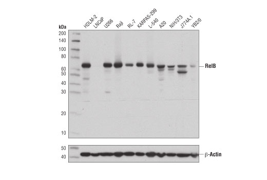Western blot analysis of extracts from various cell lines using RelB (D7D7W) Rabbit mAb (upper) or β-Actin (D6A8) Rabbit mAb #8457 (lower). KARPAS cell line source: Dr. Abraham Karpas at the University of Cambridge.
