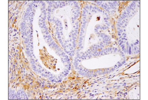 Immunohistochemical analysis of paraffin-embedded human colon carcinoma using RelB (D7D7W) Rabbit mAb.