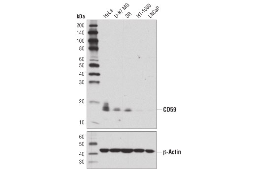 Western blot analysis of extracts from various cell lines using CD59 Antibody (upper) or β-Actin (D6A8) Rabbit mAb #8457 (lower).