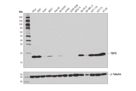 Western blot analysis of extracts from various cell lines using TSPO (D1N7Z) Rabbit mAb (upper) or β-Tubulin (9F3) Rabbit mAb #2128 (lower).